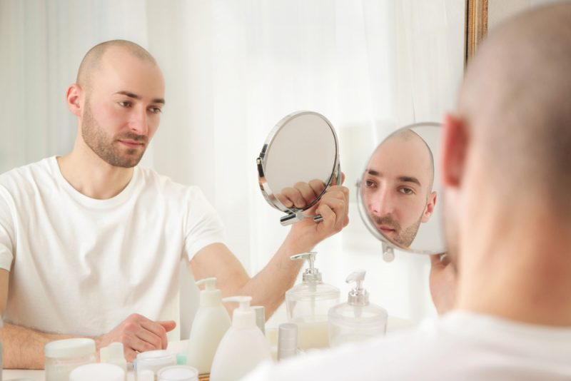 Man Hairloss