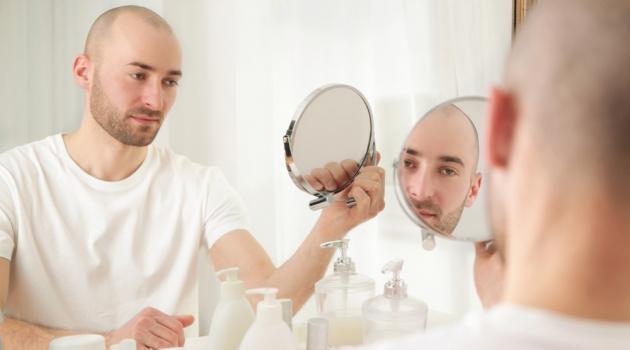 Man Hair Loss