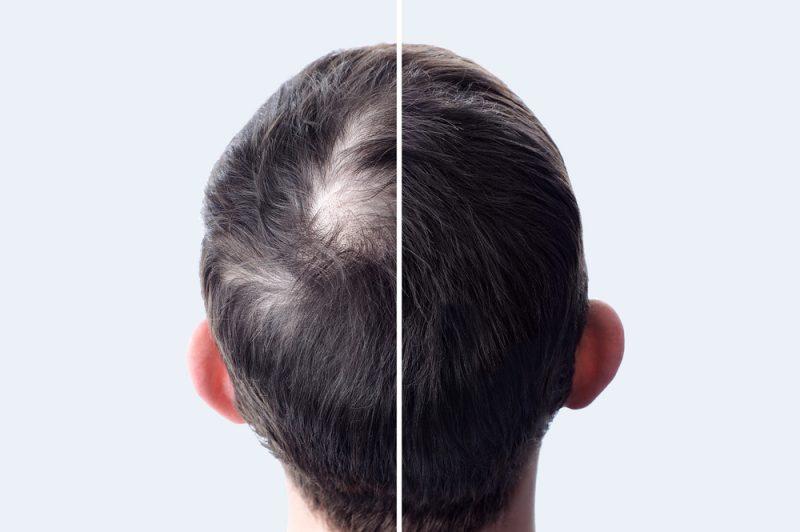Mens Hair Balding